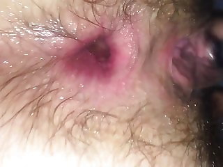 Wife dirty anal with incredible GAPE